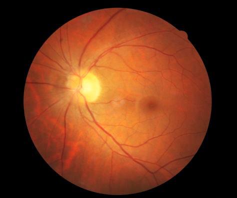 视网膜是人体唯一能看到微丝血管的组织